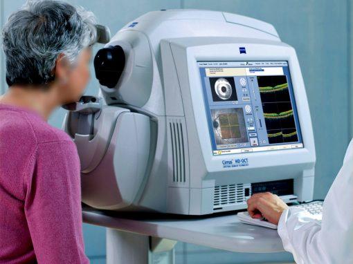 Tomographie de cohérence optique | OCT